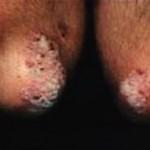 Курение связанно с высоким риском псориаза