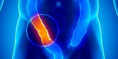 Аспирин защищает от рака толстого кишечника