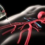 Коронарография, стентирование коронарных артерий