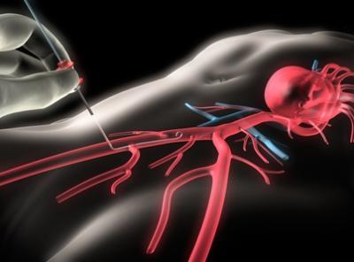 Коронарография (коронарная ангиография), стентирование коронарных артерий