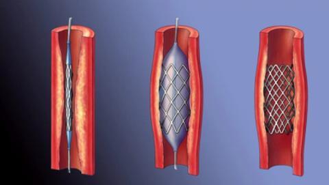 Введение стента (эндопротезирование) стентирование