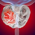 Рак предстательной железы - скрининговые тесты ничего не дают
