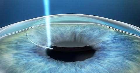 Лазерный кератомилез: какой метод эффективнее