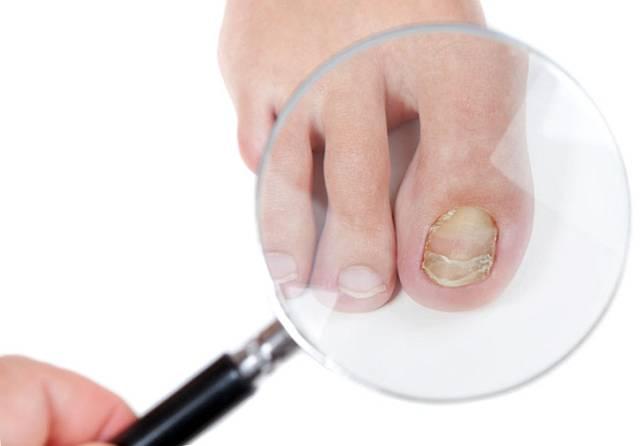 Грибок ногтей на ногах онихомикоз